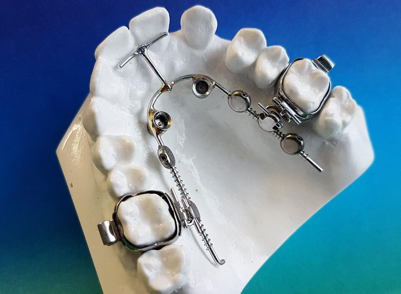 Kieferorthopädie H&S Dentaltechnik